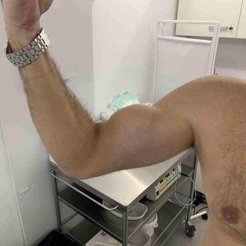 Ruptura tenon biceps. Semnul Popeye