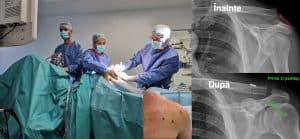 disjunctie acromio claviculara lurbo burbo dureri articulare