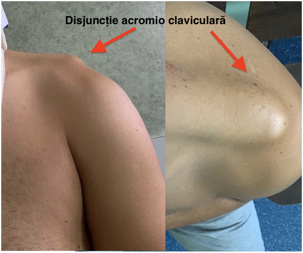 disjunctie acromio claviculara