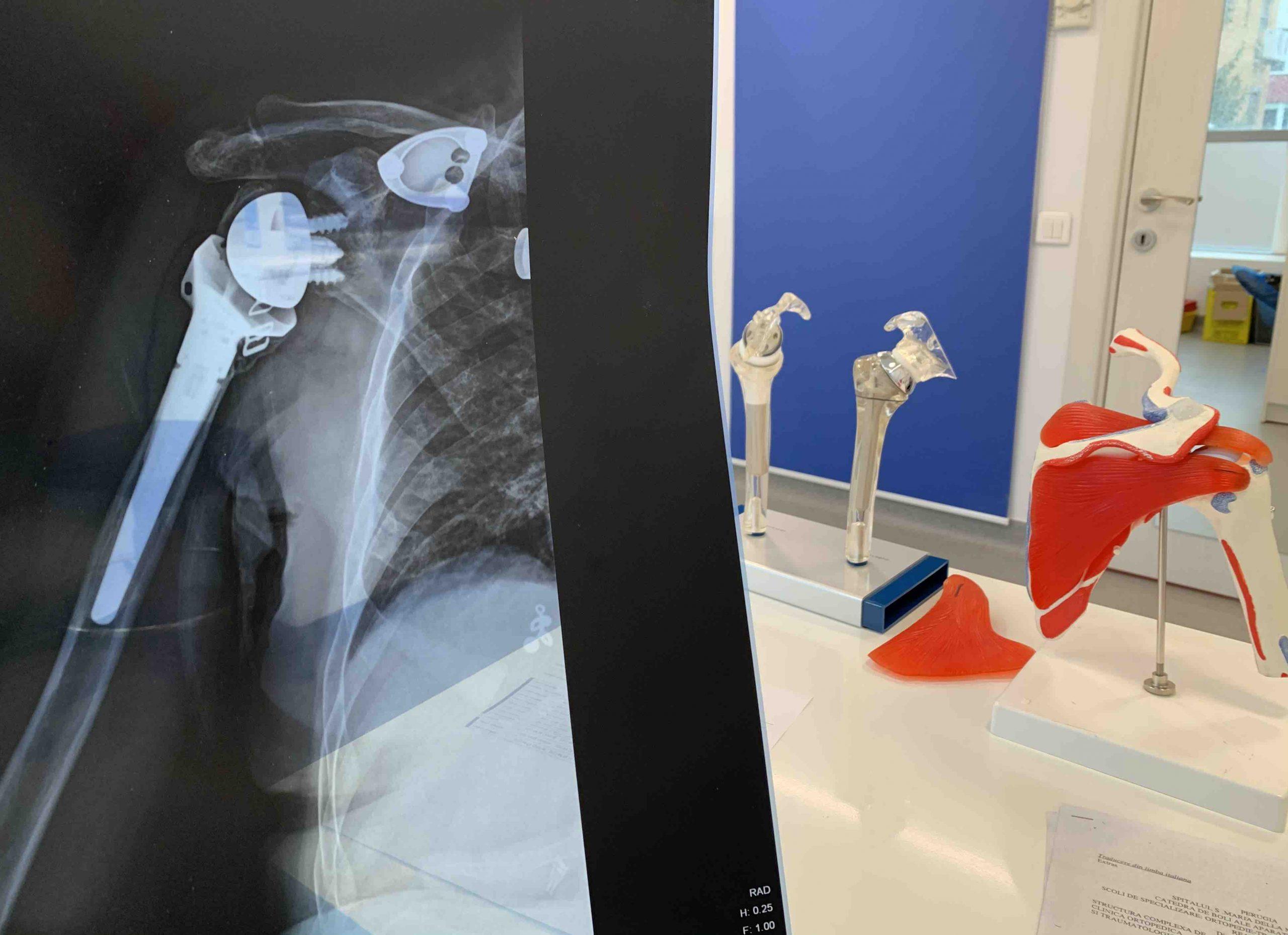 consultatie online artroscopie umăr, chirurgie umăr, second opinion umăr